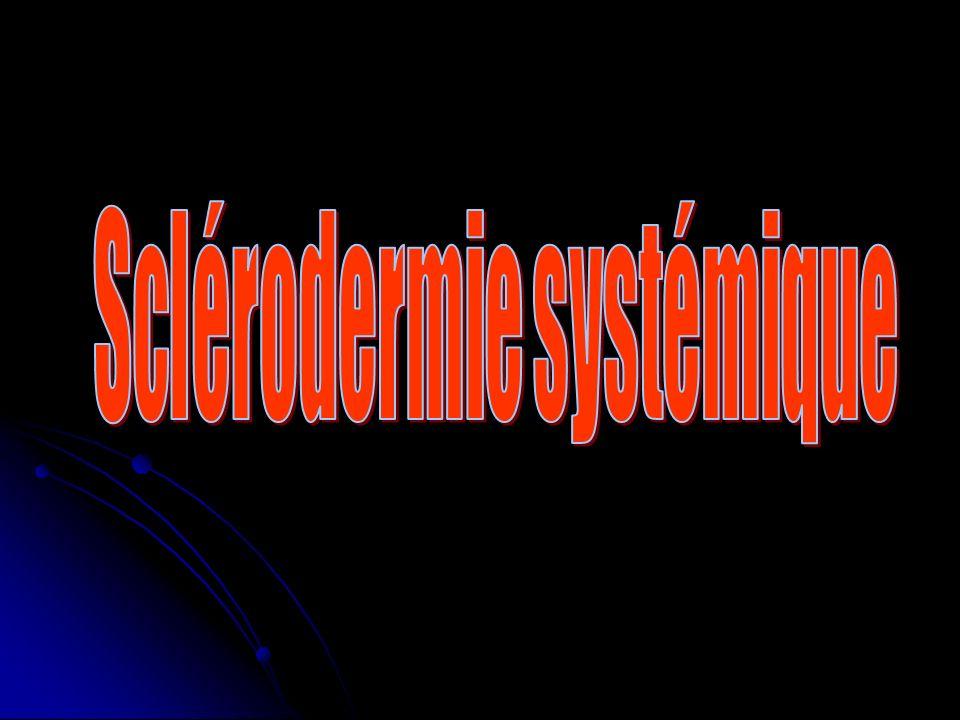 Sclérodermie systémique