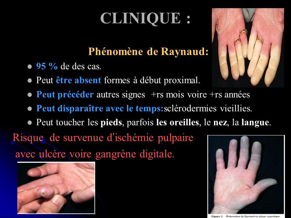 CLINIQUE : Phénomène de Raynaud: