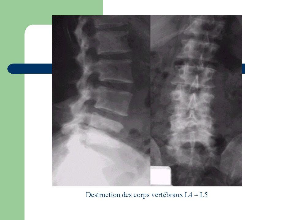 Destruction des corps vertébraux L4 – L5