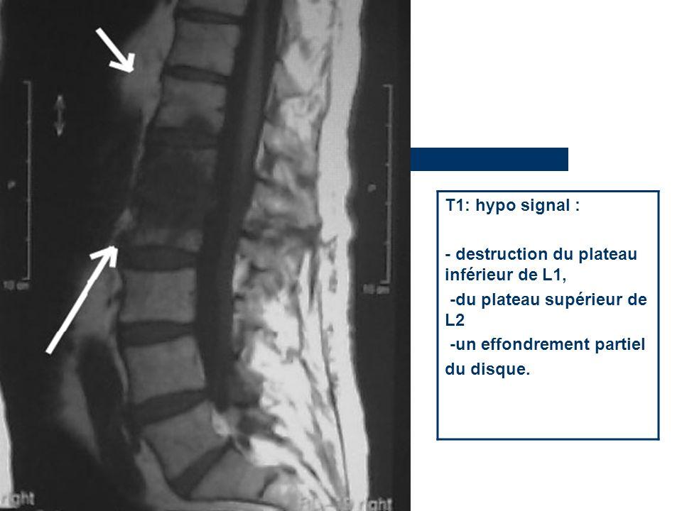 T1: hypo signal : - destruction du plateau inférieur de L1, -du plateau supérieur de L2. -un effondrement partiel.