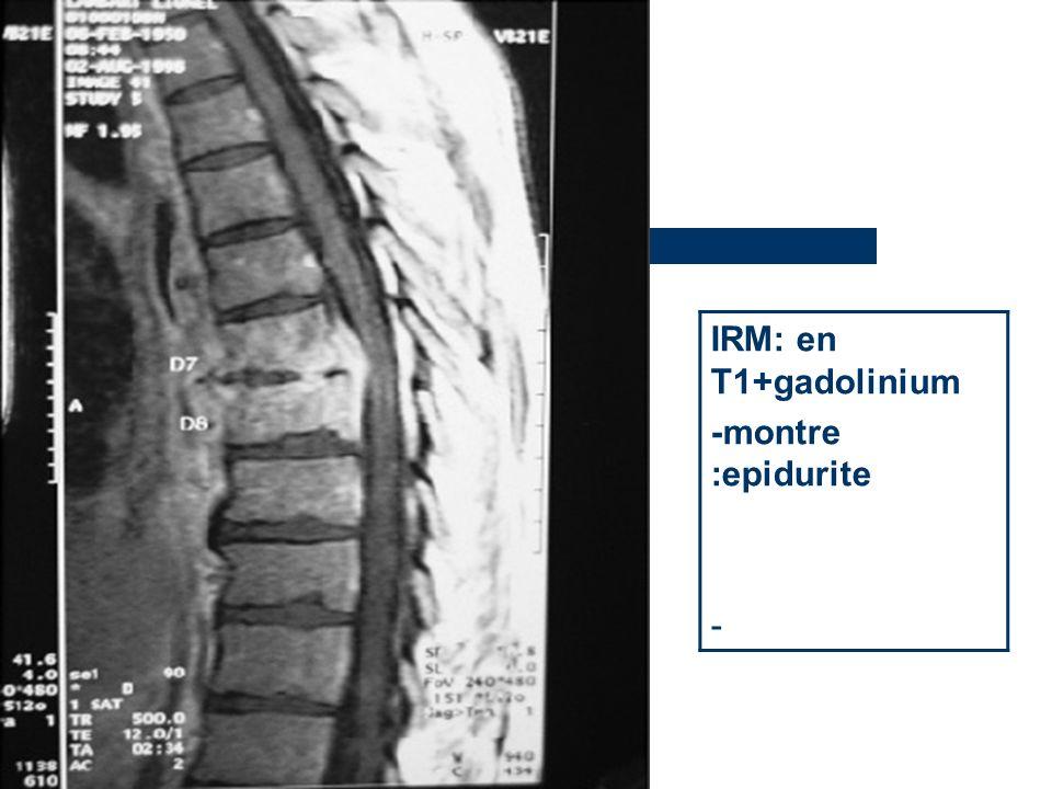 IRM: en T1+gadolinium -montre :epidurite -