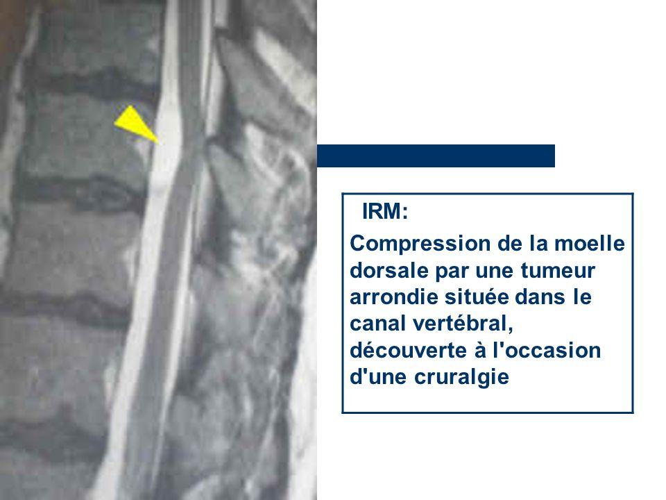 IRM: Compression de la moelle dorsale par une tumeur arrondie située dans le canal vertébral, découverte à l occasion d une cruralgie.