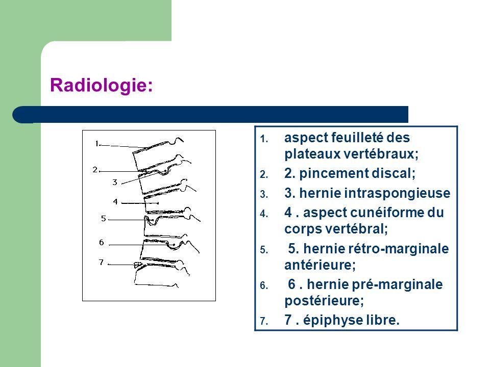 Radiologie: aspect feuilleté des plateaux vertébraux;