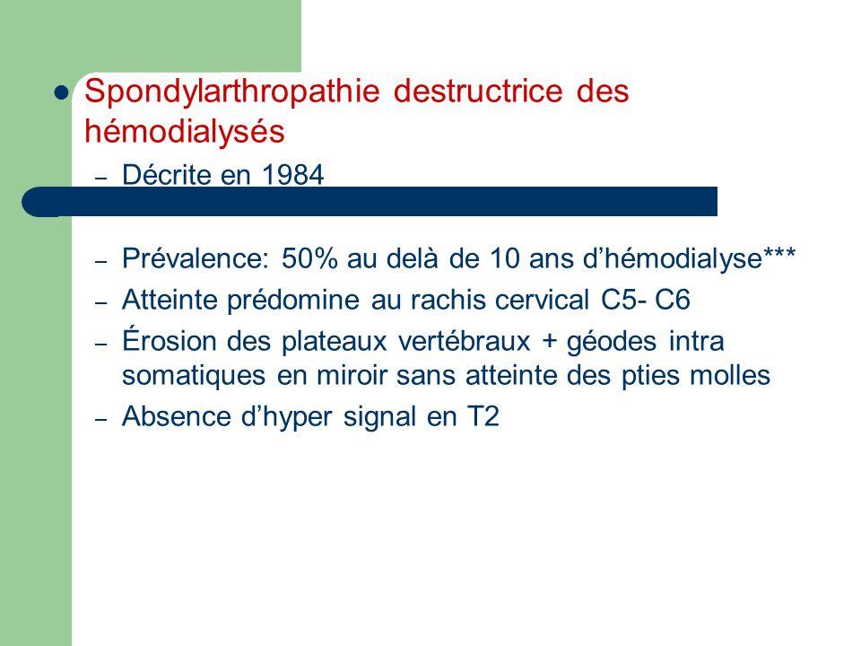 Spondylarthropathie destructrice des hémodialysés