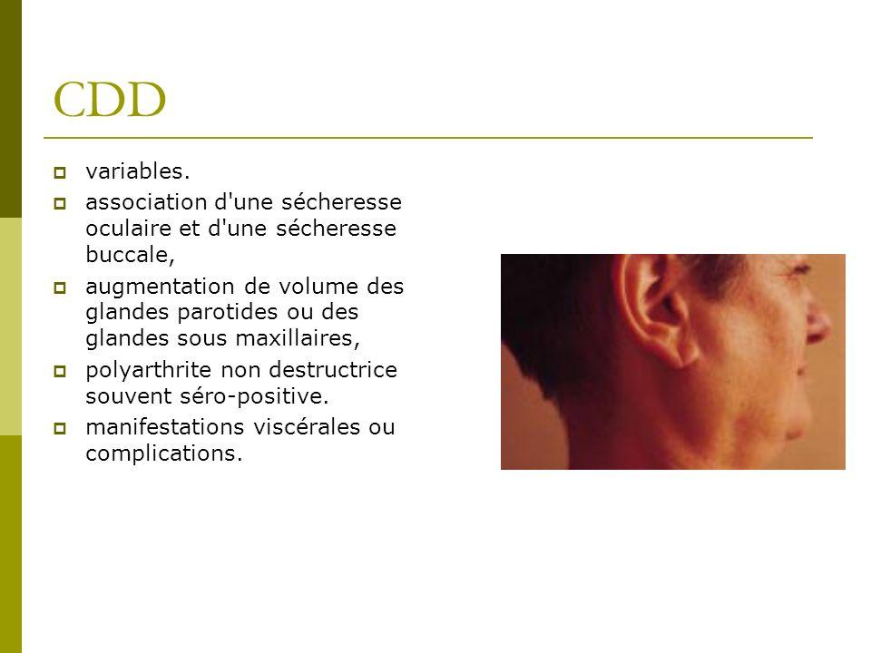 CDD variables. association d une sécheresse oculaire et d une sécheresse buccale,