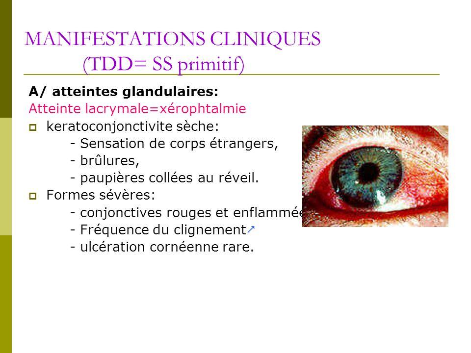 MANIFESTATIONS CLINIQUES (TDD= SS primitif)