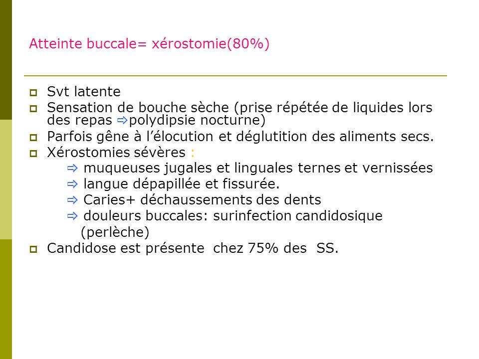 Atteinte buccale= xérostomie(80%)