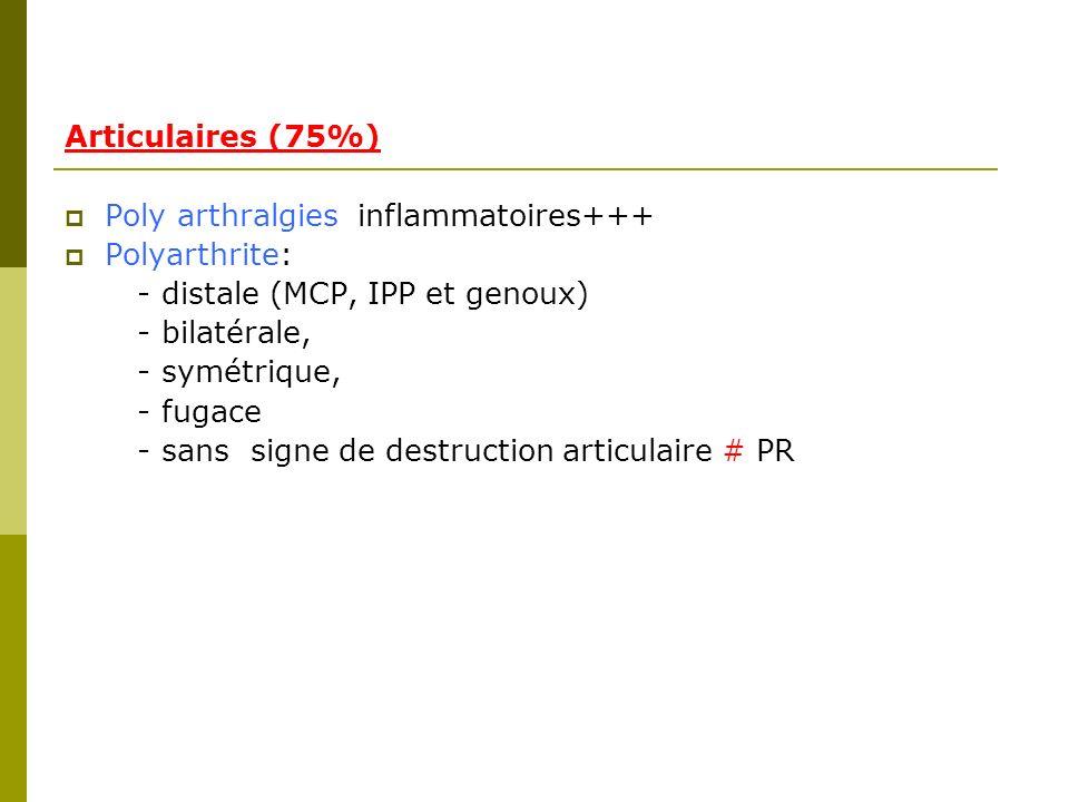 Articulaires (75%) Poly arthralgies inflammatoires+++ Polyarthrite: - distale (MCP, IPP et genoux)