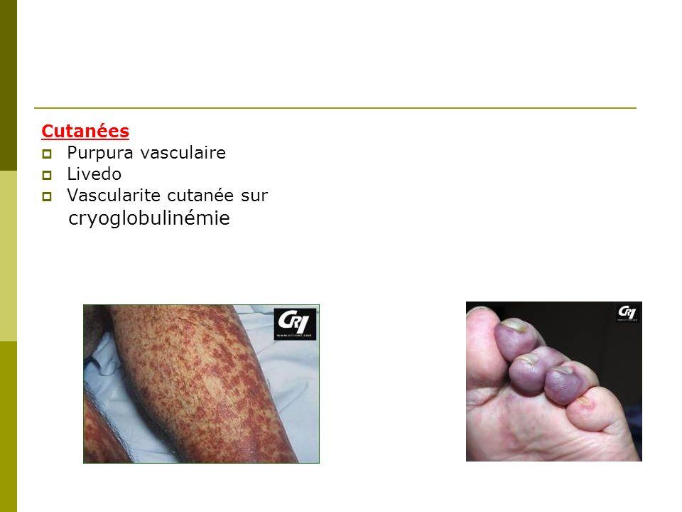 cryoglobulinémie Cutanées Purpura vasculaire Livedo
