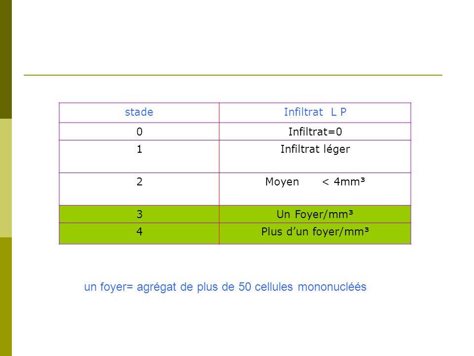 un foyer= agrégat de plus de 50 cellules mononucléés