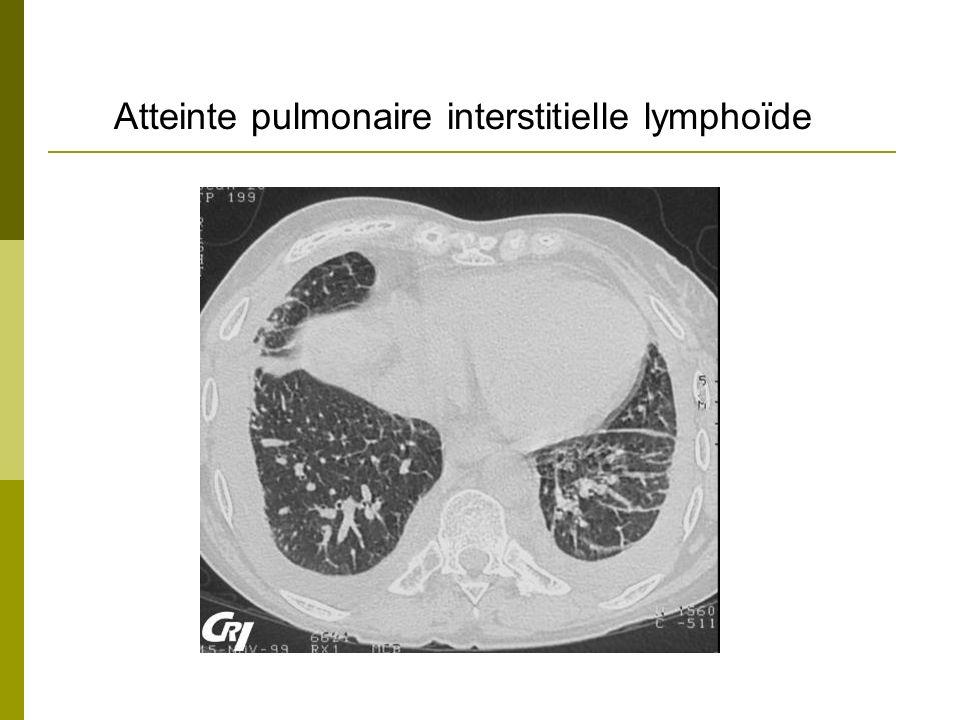 Atteinte pulmonaire interstitielle lymphoïde