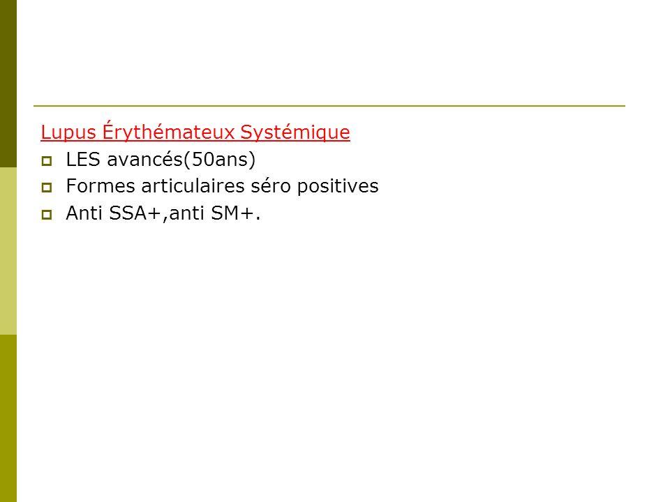Lupus Érythémateux Systémique