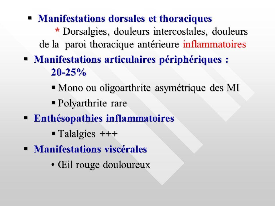Manifestations dorsales et thoraciques