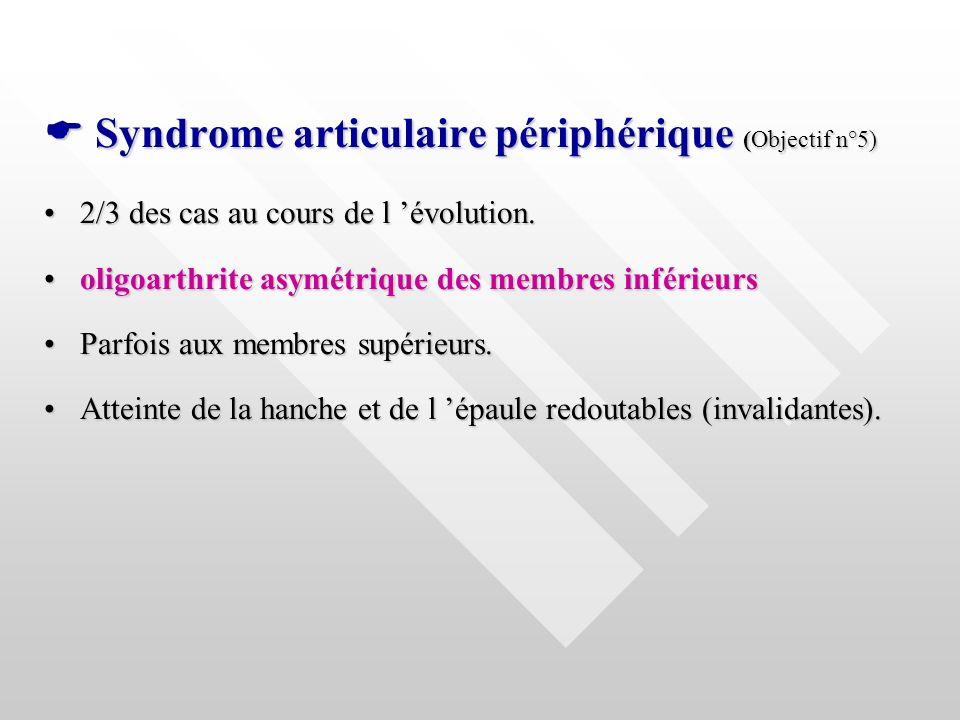  Syndrome articulaire périphérique (Objectif n°5)