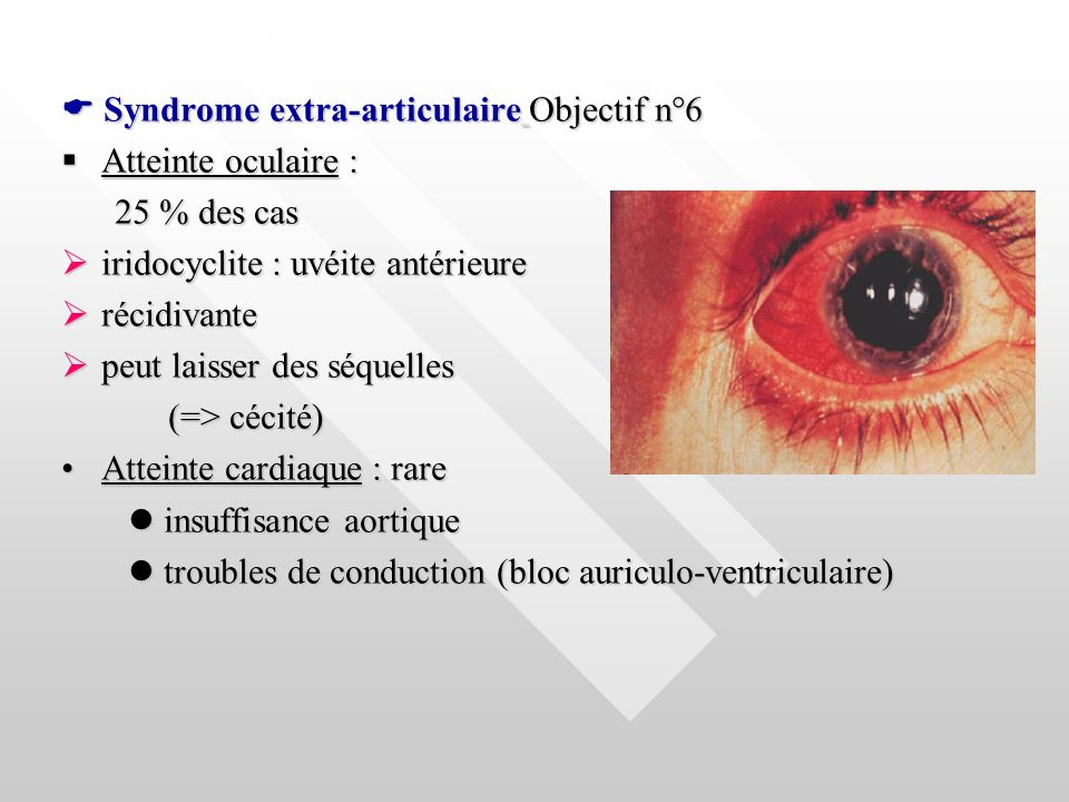  Syndrome extra-articulaire Objectif n°6