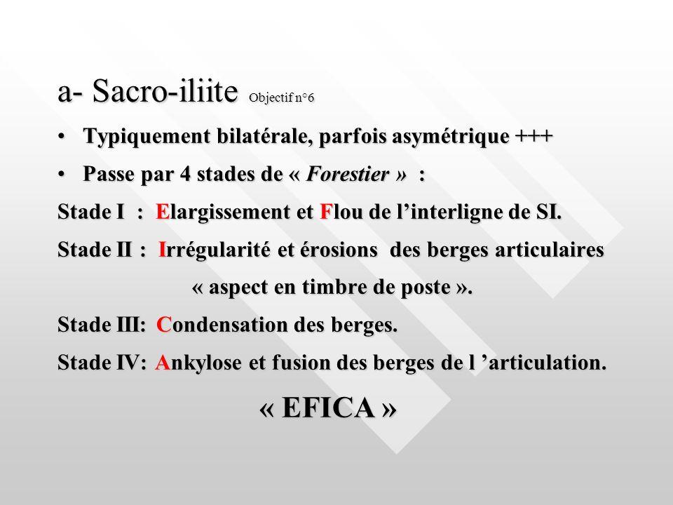a- Sacro-iliite Objectif n°6