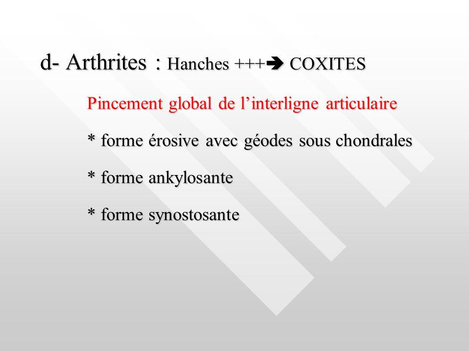d- Arthrites : Hanches +++ COXITES