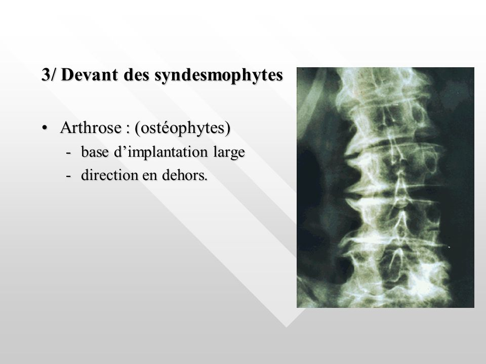3/ Devant des syndesmophytes