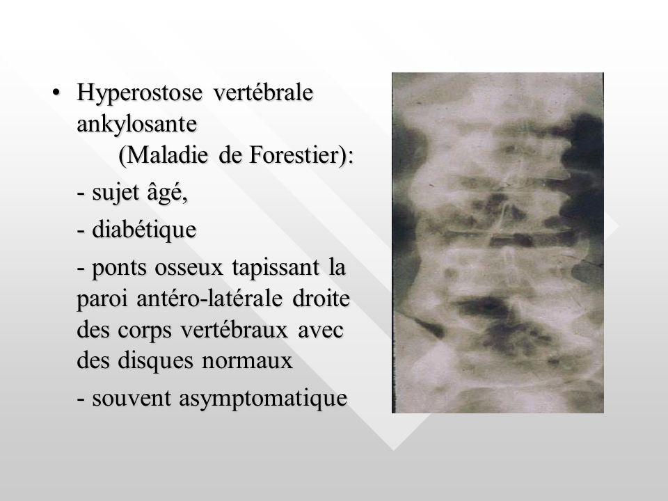 Hyperostose vertébrale ankylosante (Maladie de Forestier):