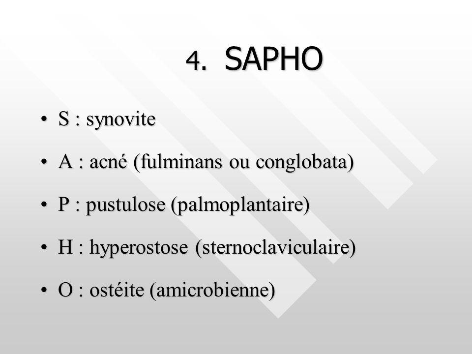 4. SAPHO S : synovite A : acné (fulminans ou conglobata)