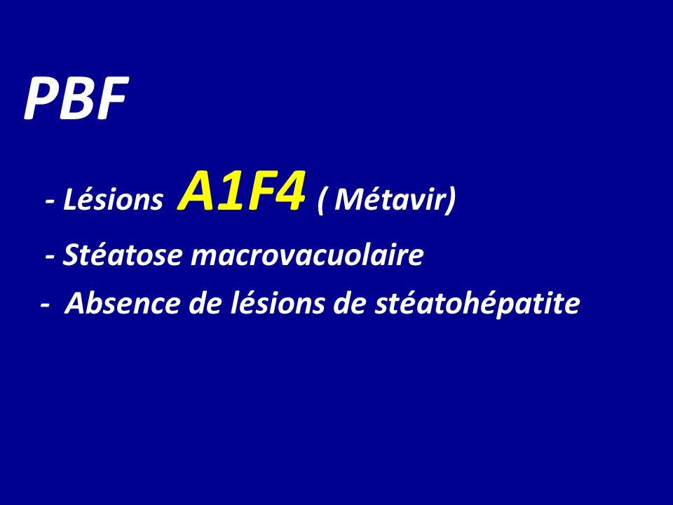 PBF - Lésions A1F4 ( Métavir) - Stéatose macrovacuolaire