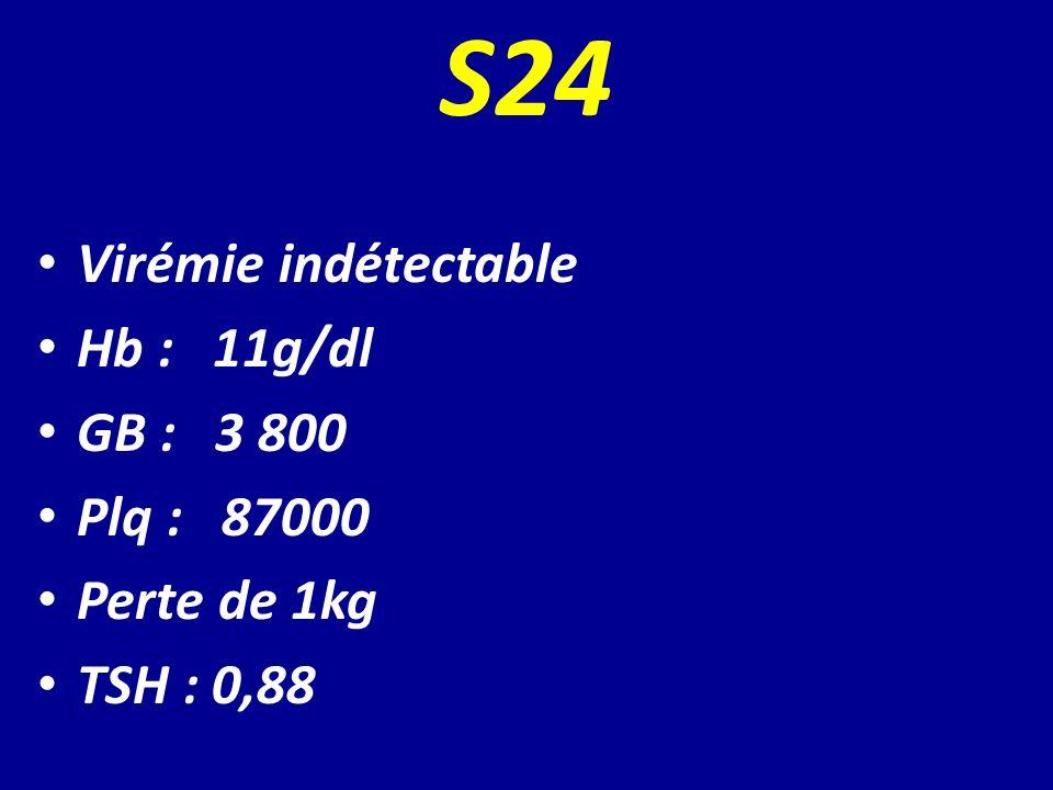 S24 Virémie indétectable Hb : 11g/dl GB : 3 800 Plq : 87000