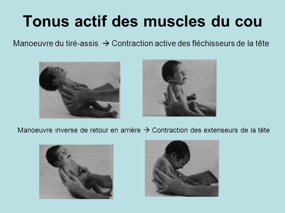 Tonus actif des muscles du cou