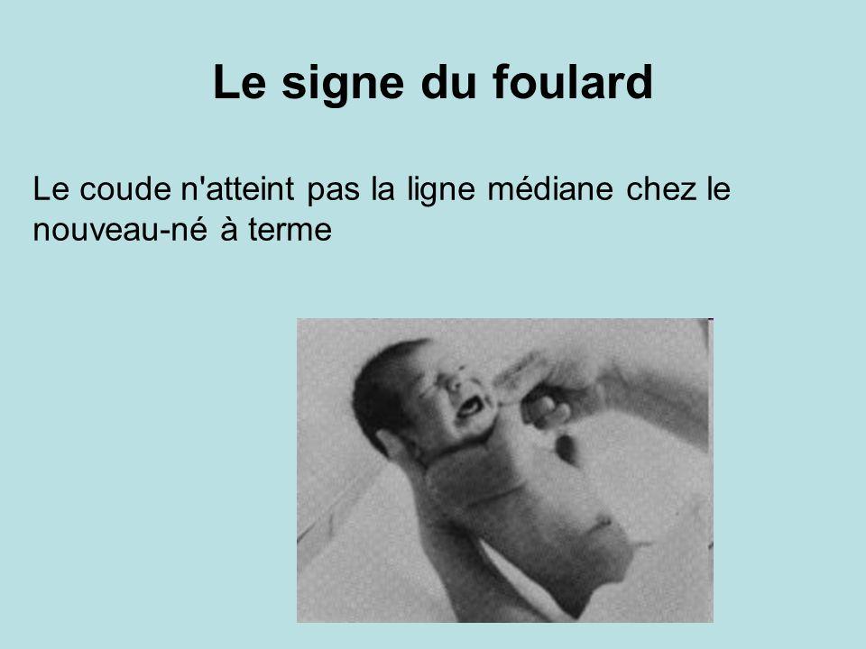 Le signe du foulard Le coude n atteint pas la ligne médiane chez le nouveau-né à terme