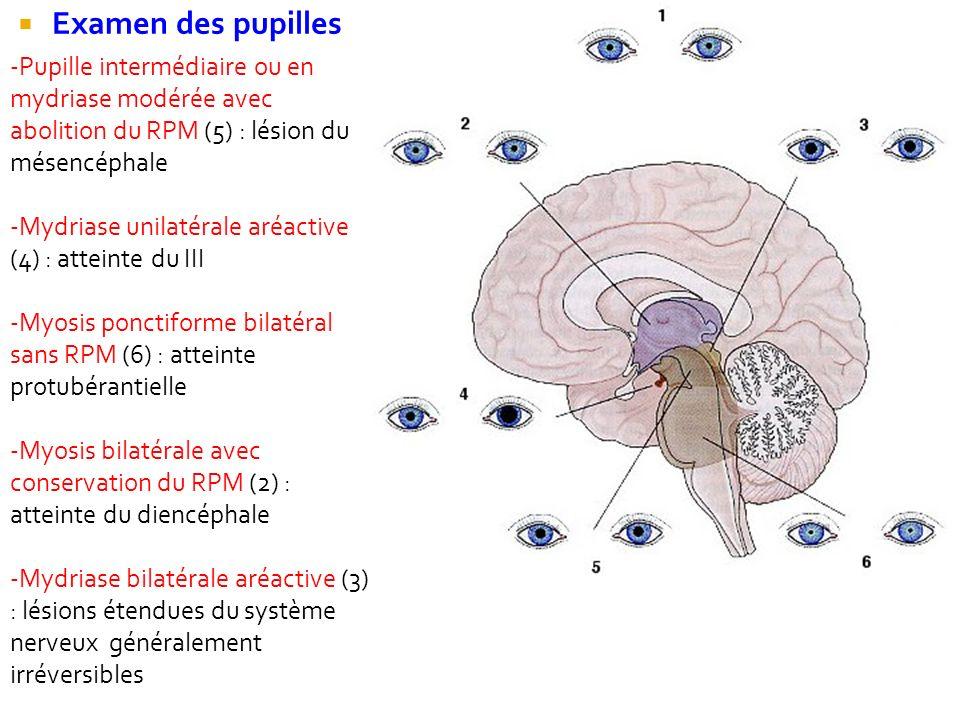 Examen des pupilles Pupille intermédiaire ou en mydriase modérée avec abolition du RPM (5) : lésion du mésencéphale.
