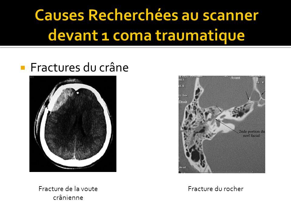 Causes Recherchées au scanner devant 1 coma traumatique