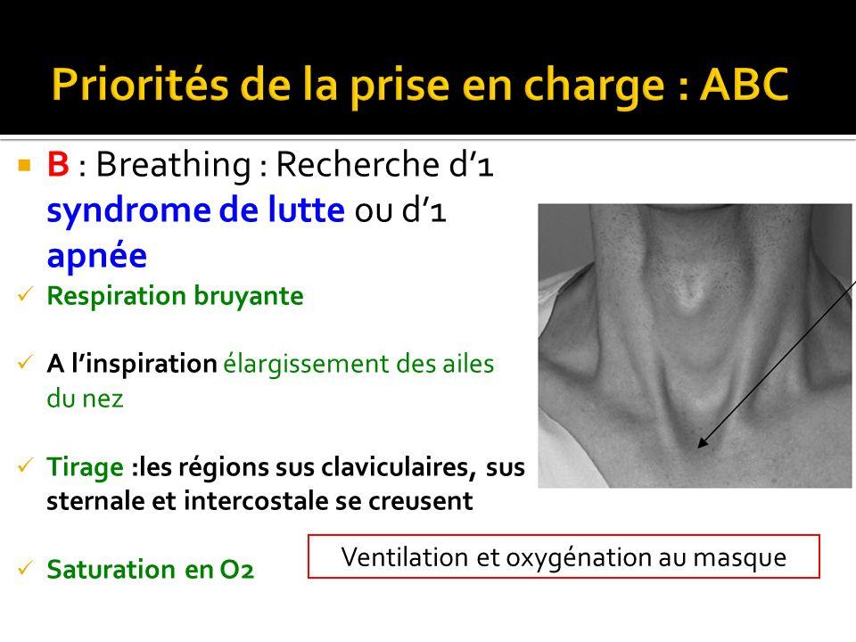 Ventilation et oxygénation au masque