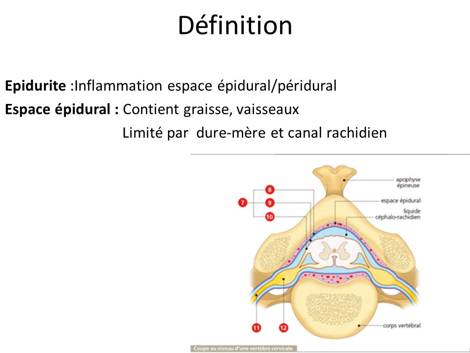 DéfinitionEpidurite :Inflammation espace épidural/péridural Espace épidural : Contient graisse, vaisseaux Limité par dure-mère et canal rachidien