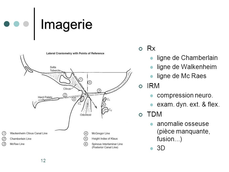 Imagerie Rx IRM TDM ligne de Chamberlain ligne de Walkenheim