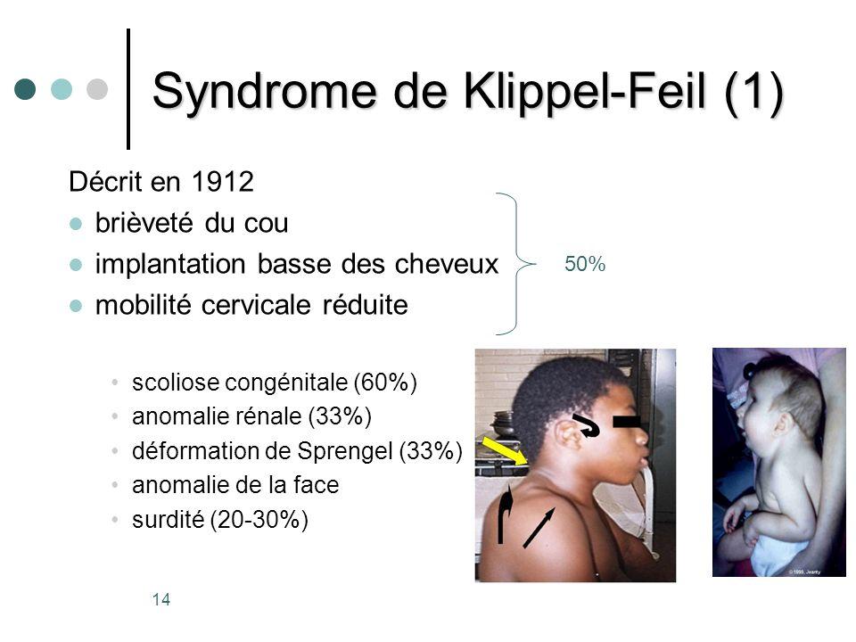 Syndrome de Klippel-Feil (1)