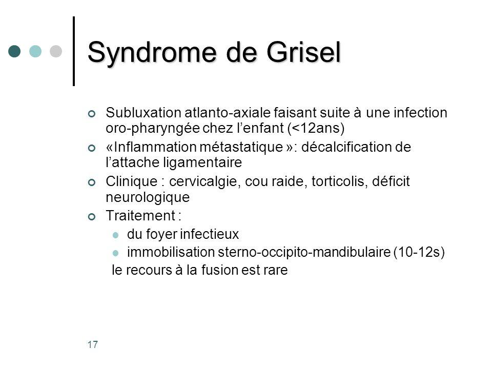 Syndrome de Grisel Subluxation atlanto-axiale faisant suite à une infection oro-pharyngée chez l'enfant (<12ans)