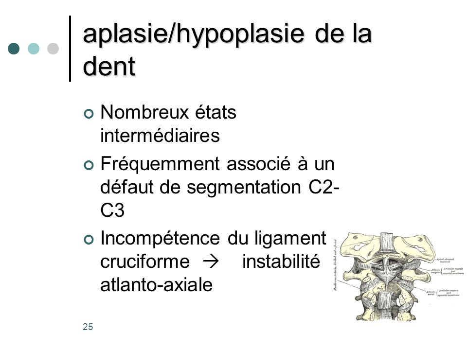 aplasie/hypoplasie de la dent