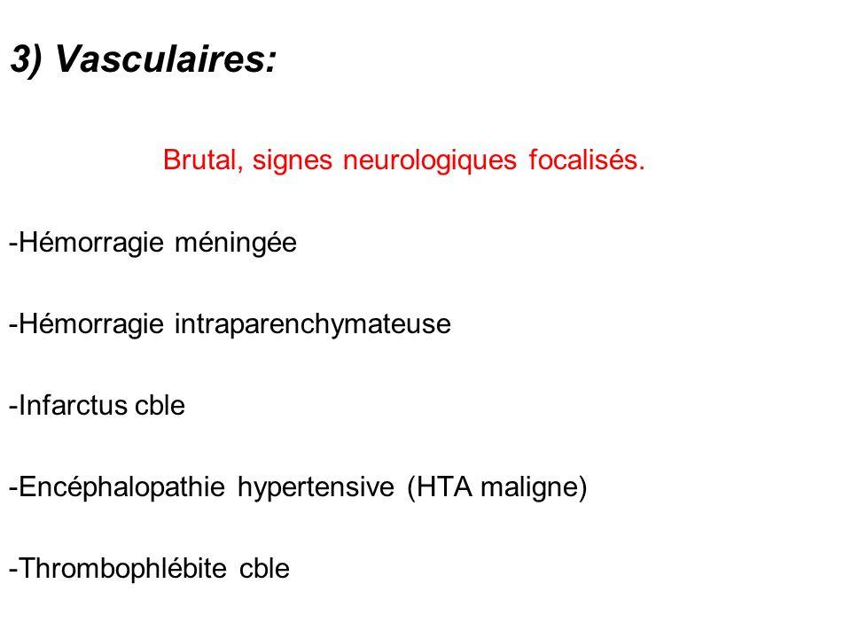 Brutal, signes neurologiques focalisés.
