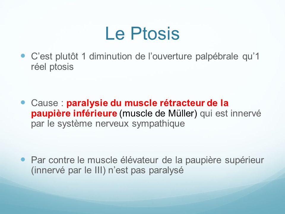 Le Ptosis C'est plutôt 1 diminution de l'ouverture palpébrale qu'1 réel ptosis.