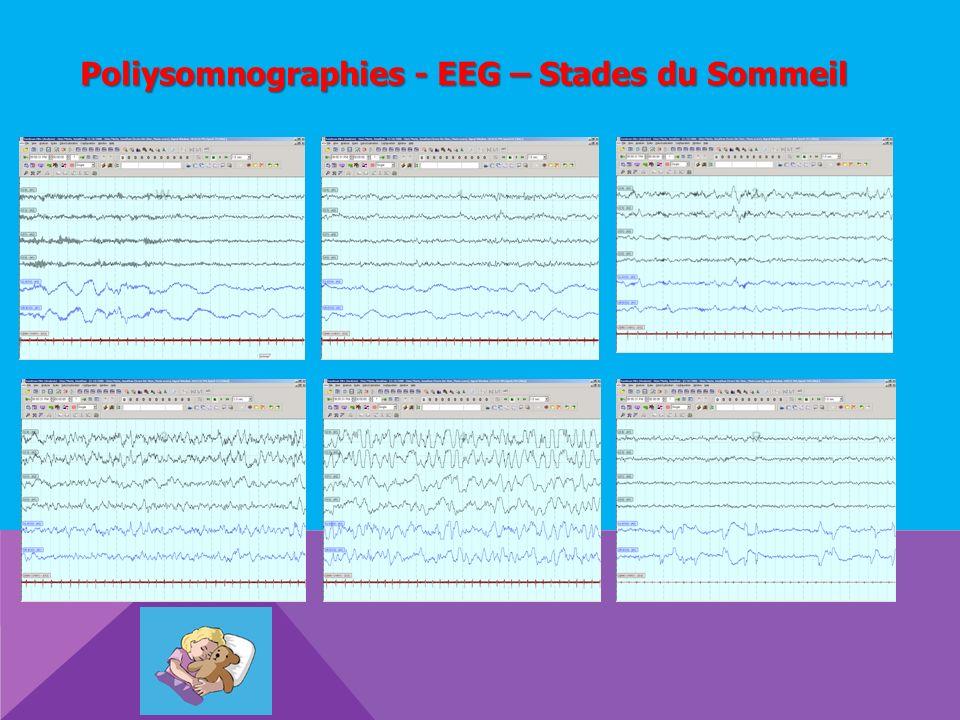 Poliysomnographies - EEG – Stades du Sommeil
