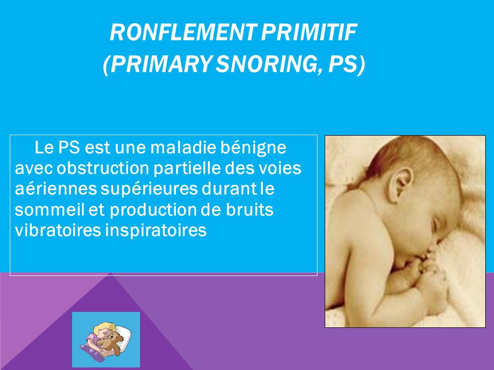 Ronflement primitif (Primary Snoring, PS)