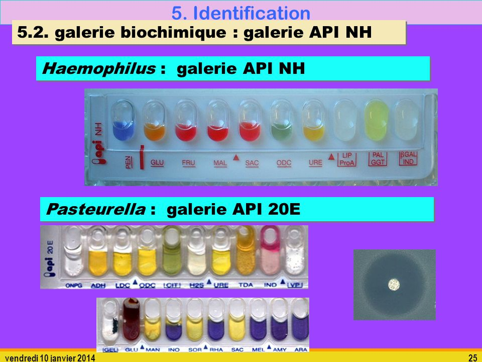 5. Identification 5.2. galerie biochimique : galerie API NH