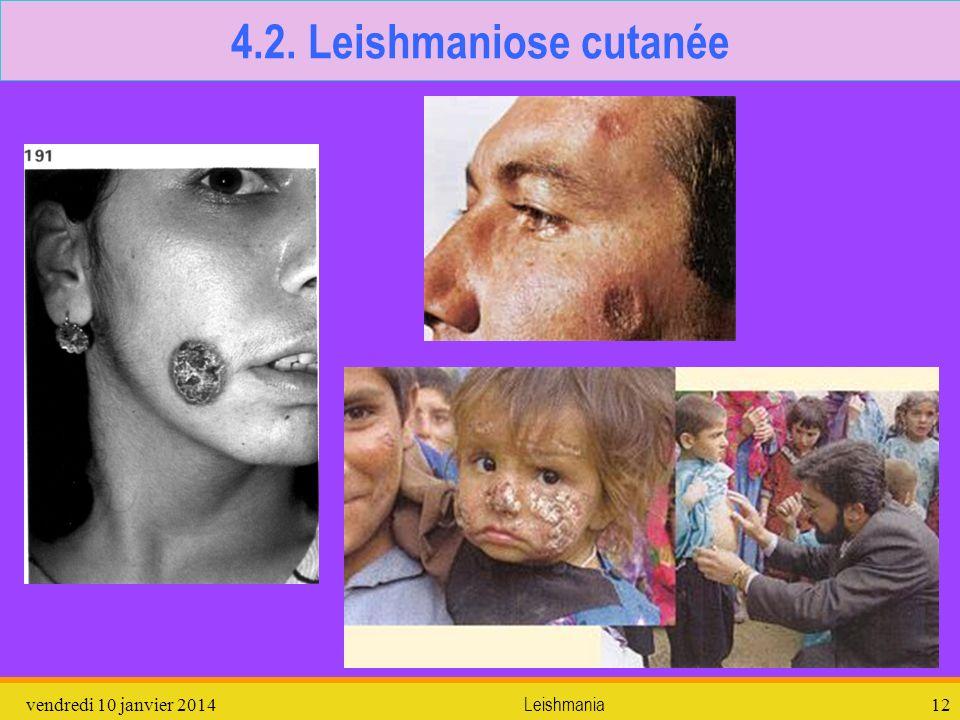 4.2. Leishmaniose cutanée dimanche 26 mars 2017 Leishmania