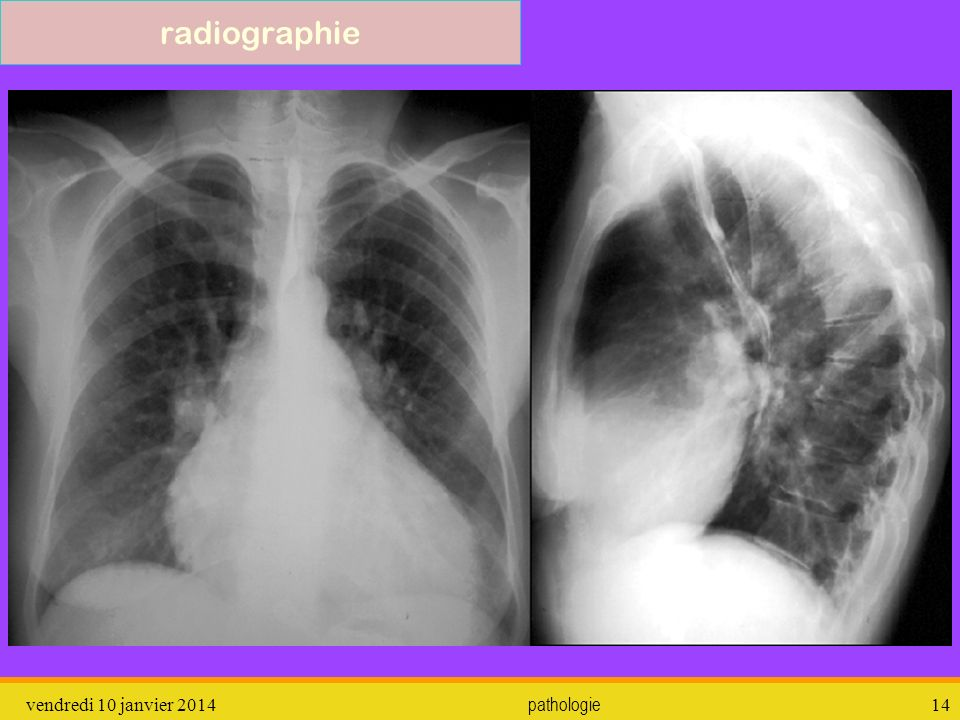 radiographie dimanche 26 mars 2017 pathologie