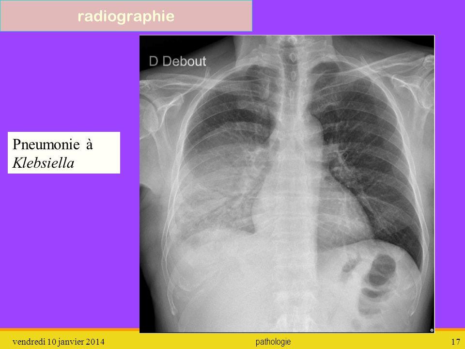 Pneumonie à Klebsiella