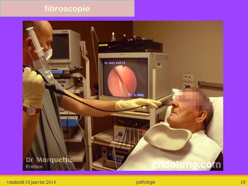 fibroscopie dimanche 26 mars 2017 pathologie