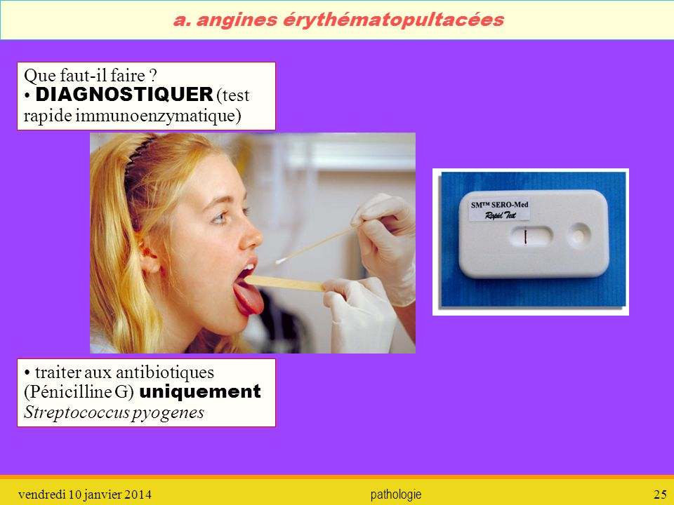 a. angines érythématopultacées