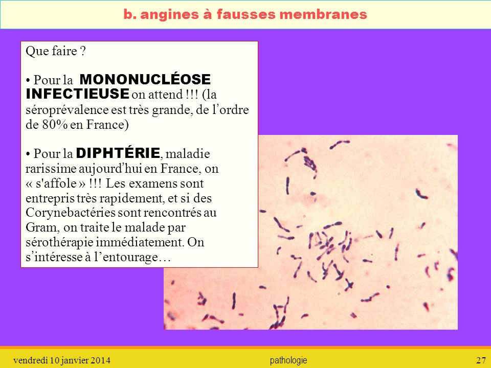 b. angines à fausses membranes