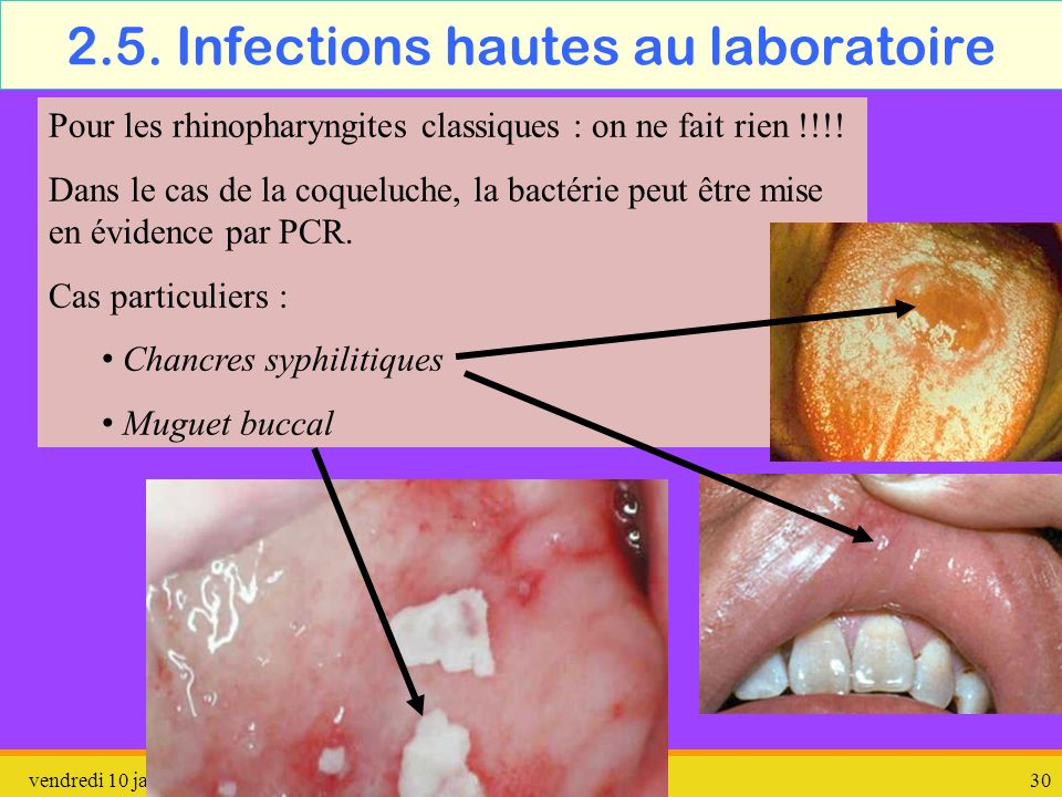 2.5. Infections hautes au laboratoire