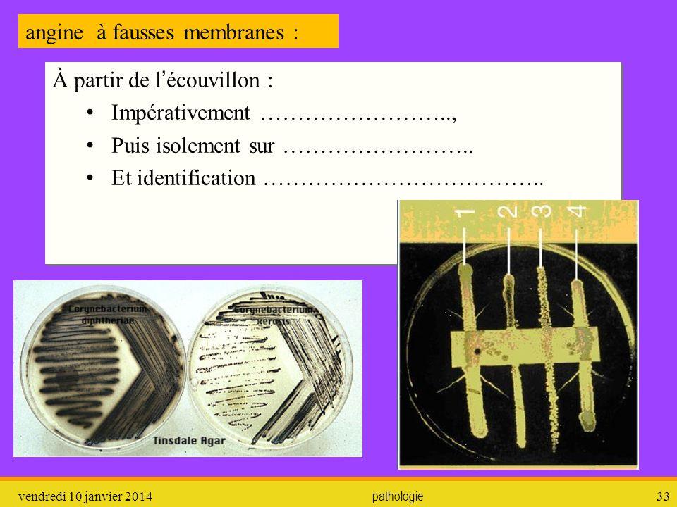 angine à fausses membranes :