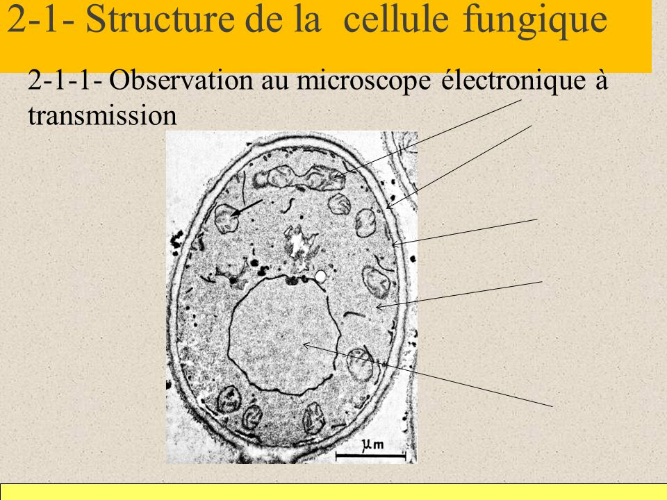 2-1- Structure de la cellule fungique
